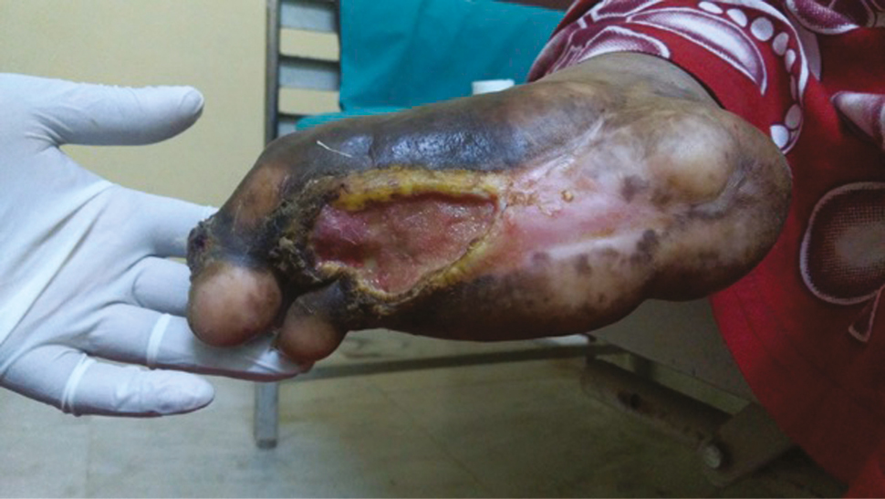 Figure 1: Diabetic foot ulcer before treatment